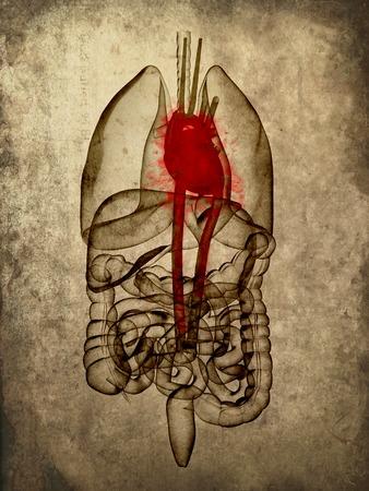 1424637 - grunge anatomy